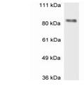 SP5332P - MBD1