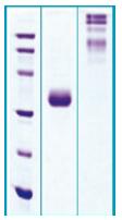 PA500X - Adiponectin