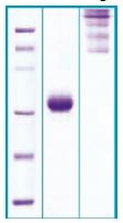 PA502X - Adiponectin