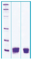 PA506X - Cystatin-C