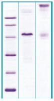 PA510X - CD340 / ERBB2 / HER2