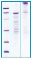 PA514X - Periostin