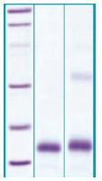 PA520X - PLA2G1B