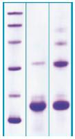 PA521X - PLA2G2A