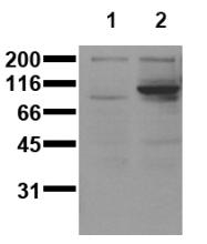AM00151PU-N - STAT6