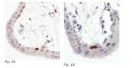 AM03100PU-N - TP53 / p53