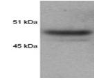SP5322P - HDAC3