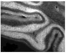 SP5336P - IP3 receptor 2 / ITPR2