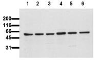 AM00110PU-N - AKT1 / PKB