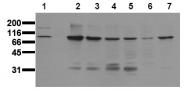 AM00021PU-N - Catenin beta-1
