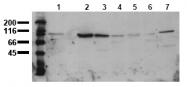 AM00018PU-N - Catenin beta-1