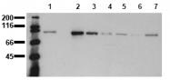 AM00017PU-N - Catenin beta-1