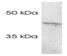 SP5374P - PSMC5 / SUG1