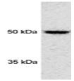 SP5370P - PSMD4 / MCB1