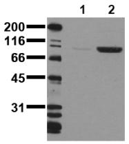 AM00075PU-N - CD220 / INSR