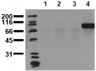 AM00076PU-N - CD220 / INSR