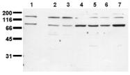 AM00077PU-N - CD220 / INSR