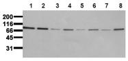 AM00078PU-N - CD220 / INSR