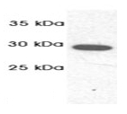 SP5367P - PSMA1