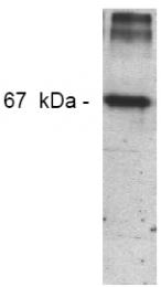 AM00099PU-N - Nitrotyrosine