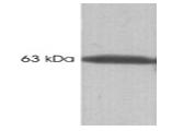 SM5107 - Calsequestrin-1