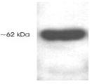SP5319P - HDAC1