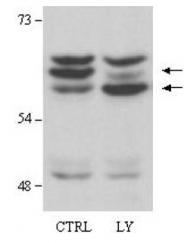 R1467 - AKT2 / PKB beta