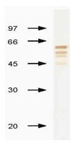 AM00953PU-N - Influenza B