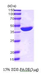 AR03009PU-L - Maltose Binding Protein Tag / MBP-Tag