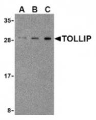 AP05246PU-N - TOLLIP