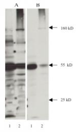 AM05341PU-N - Nitrotyrosine