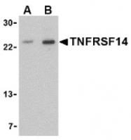 AP05252PU-N - TNFRSF14 / HVEM