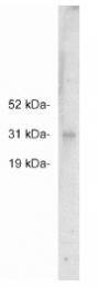 AP05258PU-N - FHL2 / SLIM3