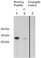 AP05258SU-N - FHL2 / SLIM3