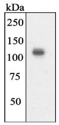 AP05273PU-N - Tyrosine-protein kinase JAK2
