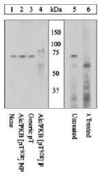 AP05274PU-N - AKT1 / PKB