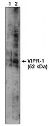 AM05395PU-N - PACAP type II Receptor / VIP Receptor