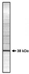 AP05038PU-N - PPP1CC