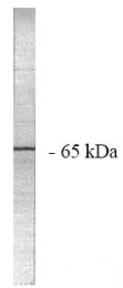 AP05040PU-N - PPP2R1A