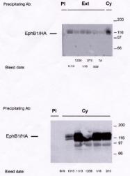 AP05062PU-N - EPHB1