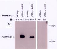 AP05067PU-N - Nephrocystin 1