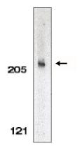 AP05085PU-N - Acinus / ACIN1