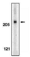 AP05087PU-N - Acinus / ACIN1