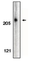 AP05088PU-N - Acinus / ACIN1
