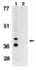 AP05094PU-N - BNIP3L / BNIP3A