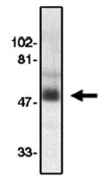 AP05102PU-N - CDw198 / CCR8