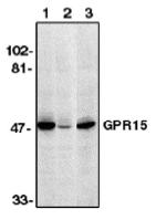AP05105PU-N - GPR15