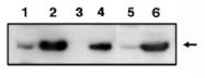 AP05106PU-N - TP53I3