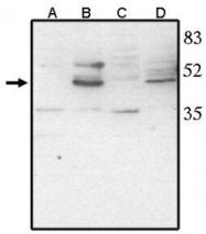 AP05111PU-N - VSX2 / CHX10