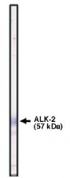 AP05119PU-N - Activin receptor type 1 / ACRV1